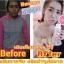 LIZE' อนุพันธ์วิตามินรวม Beauty Supplement Collagen Peptide thumbnail 7