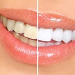ฟันเหลืองเกิดจากอะไร มาดูกัน