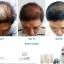 Nutriol Hair Fitness Treatment thumbnail 5